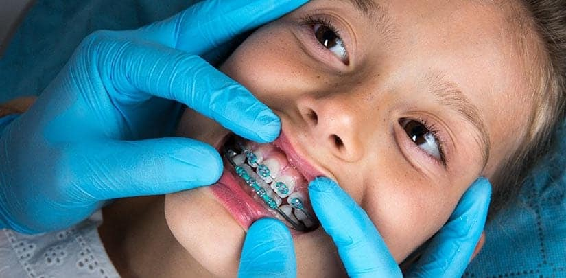 4 Care Tips For Children With Braces